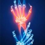 El dolor es el síntoma que más afecta a las personas con problemas articulares.