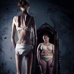 La anorexia hace que el enfermo se vea obeso aun cuando su peso se encuentra por debajo de lo recomendado.