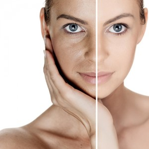 El envejecimiento natural obedece a fases perfectamente identificadas, aunque no todas las mujeres acusen las arrugas, la flacidez y los cambios de textura con la misma intensidad.