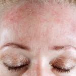 Para mantener la hidratación natural de la piel hay que buscar siempre geles libres de jabón. Y la exfoliación aplicada con frecuencia no es buena.