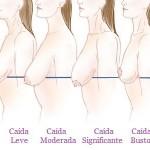 Son muchos los factores que amenazan la firmeza, tonicidad y juventud de los senos.